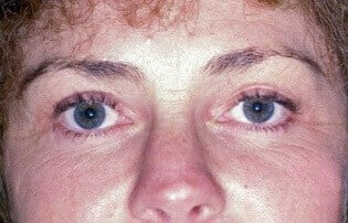 lower eyelid surgery Before
