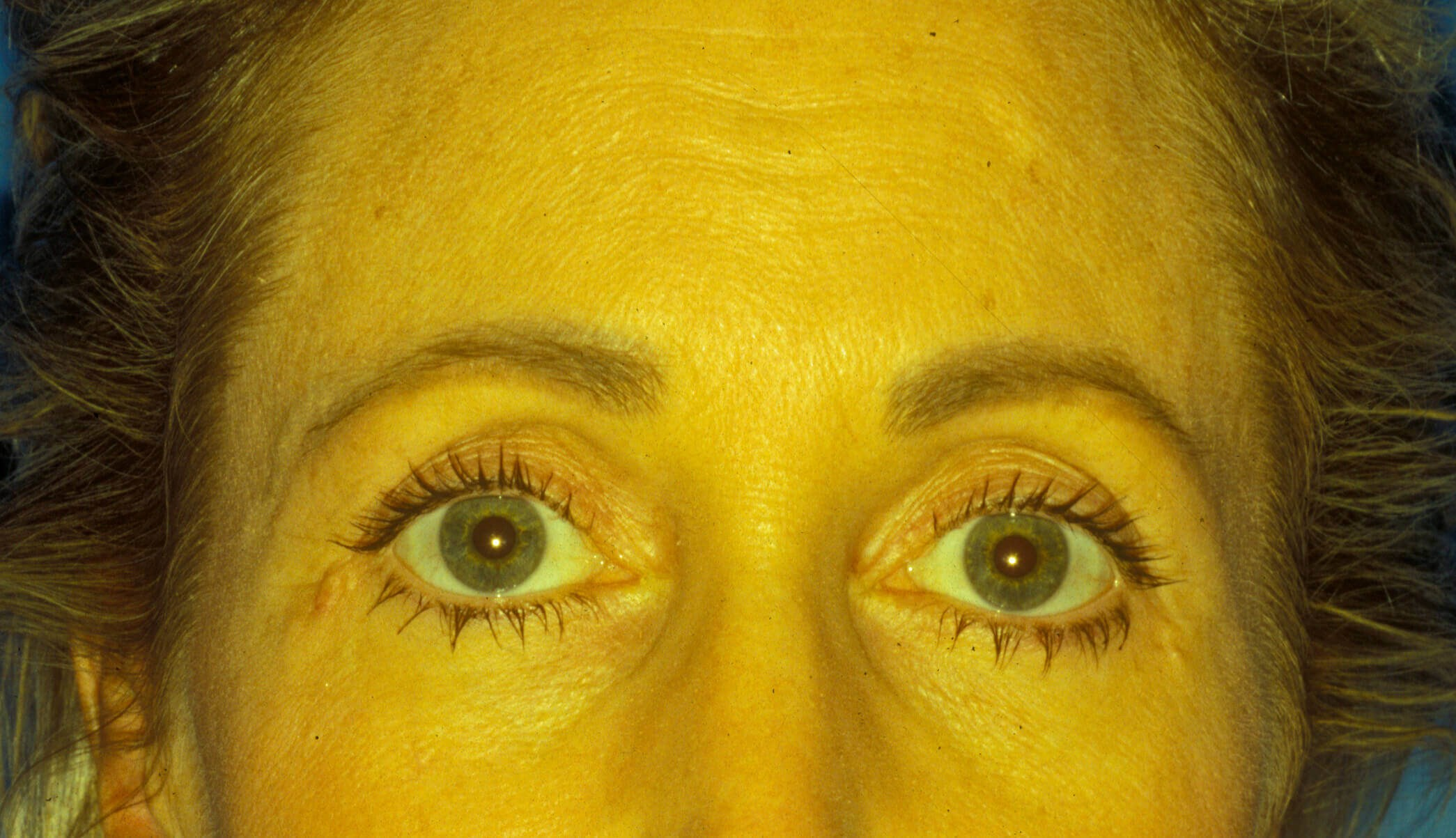 Brow lift, eyelids surgery Before