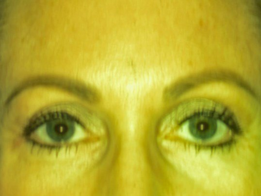 Brow lift, eyelids surgery After
