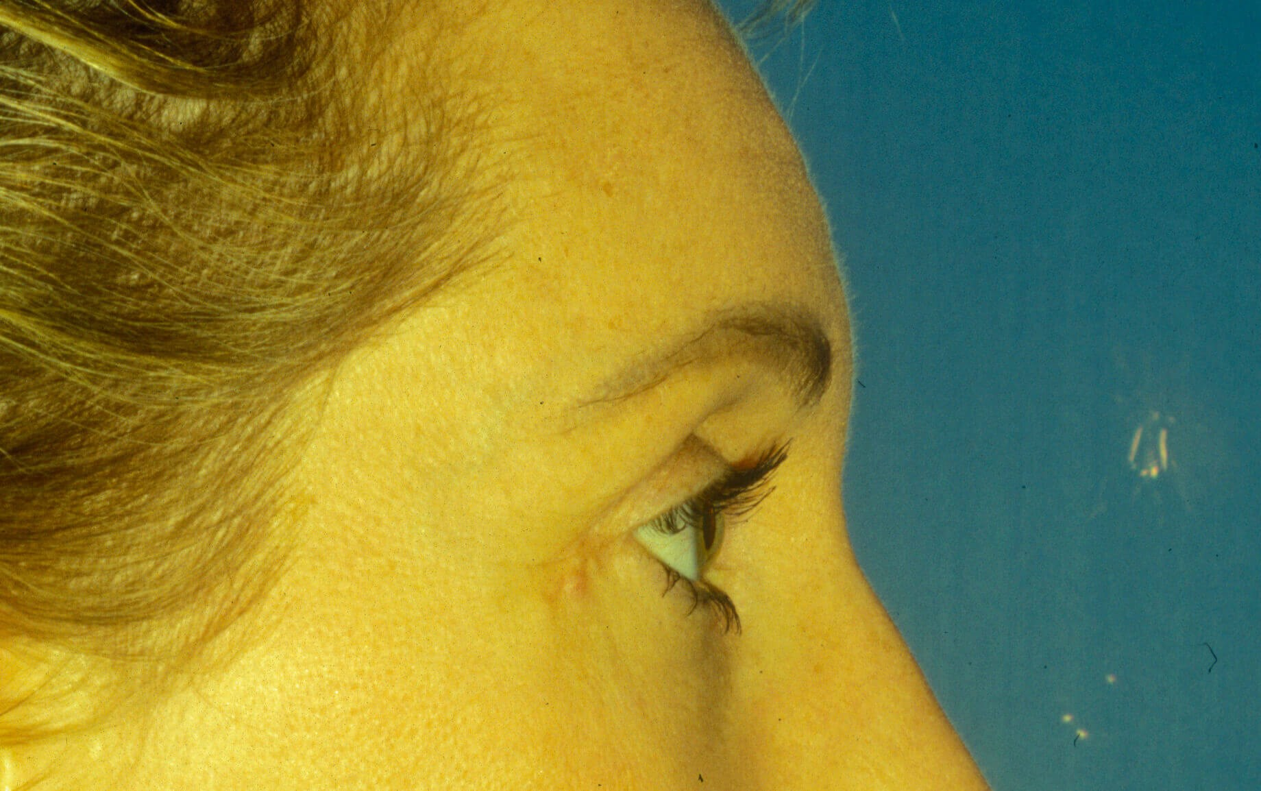 Brow lift and eyelid surgery Before