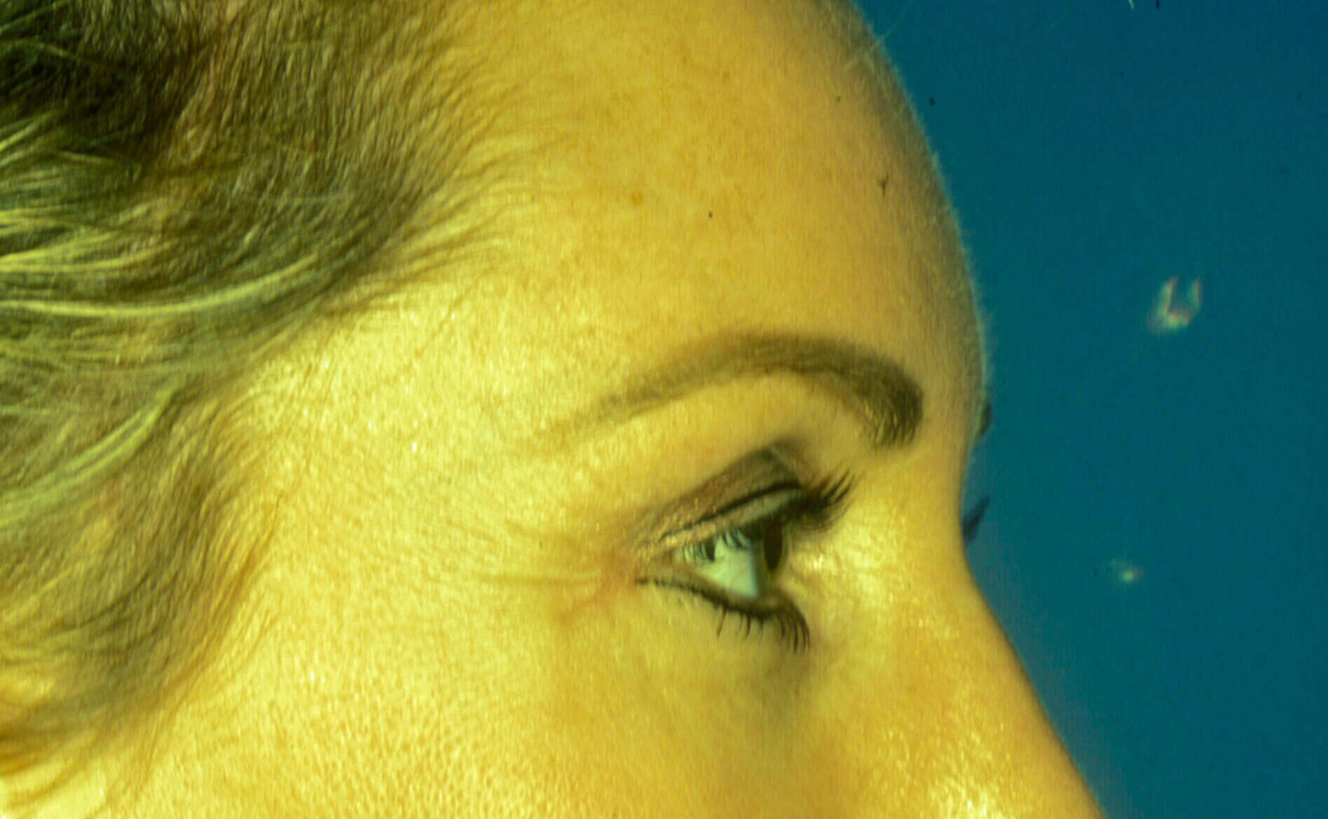 Brow lift and eyelid surgery After