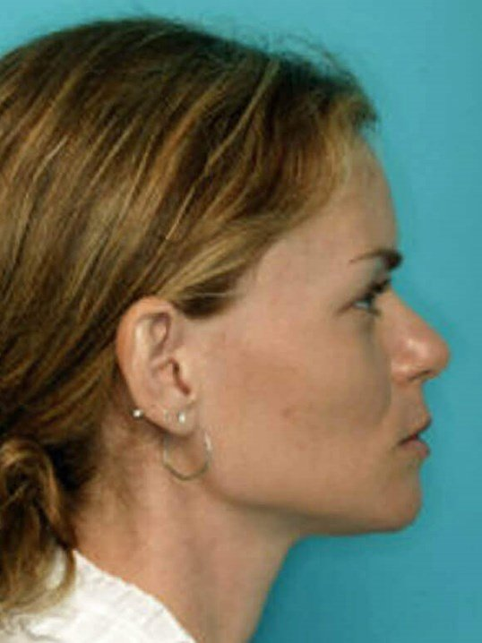 lateral profile After